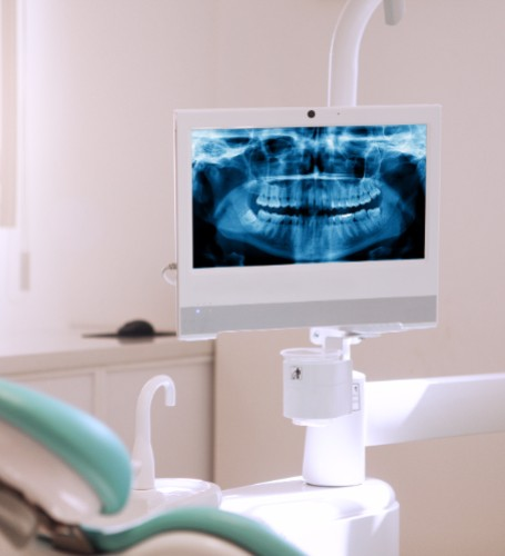 Digital dental X-Rays, Delta Dentist